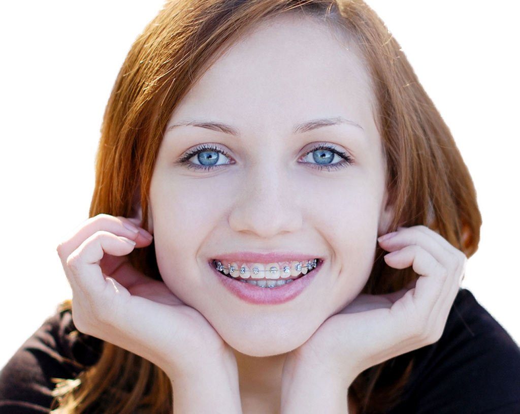 kids braces at KidsDental