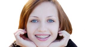 Orthodontics, Properly aligned teeth