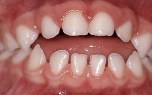 Image result for open bite baby teeth