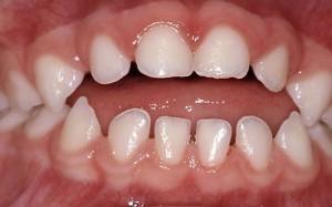 appareil extra oral
