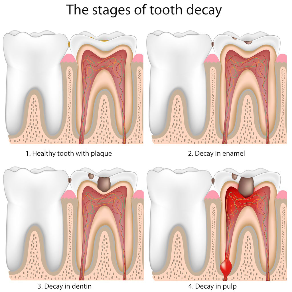 dental plaque and decay cavities and How to Prevent Them