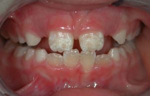 Enamel hypoplasia (enamel defect) is a common medical condition, classified as a developmental dental defect (D3),