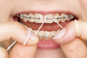 Caring for braces by flossing with braces proper brushing