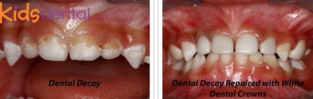 Dental Decay Repaired at Kids Dental by White Dental Crowns