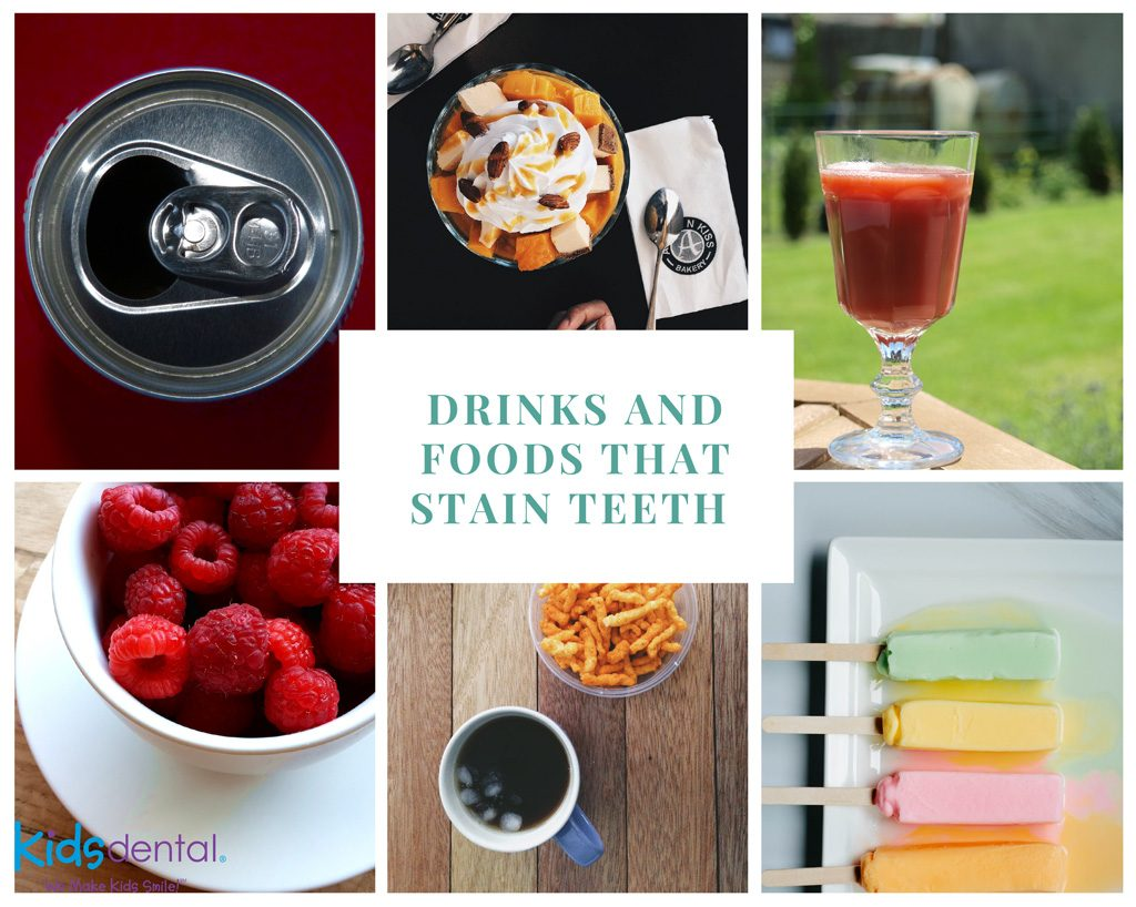 Drinks and Foods that stain teeth explained at Kids Dental Online