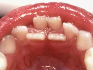 Over-Retained Primary Teeth (baby teeth) at Kids Dental Dr Holt