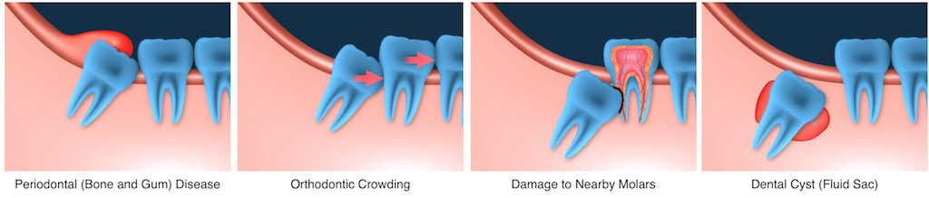 Wisdom teeth checkup at Kid's dental; Plano and Carrollton, Dallas, fort Worth