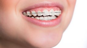 Dental braces in children at Kids Dental