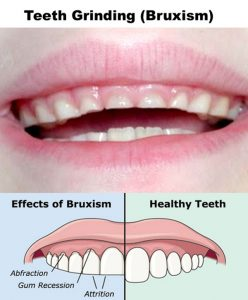 Bruxism is Teeth Grinding or Jaw Clenching in Children