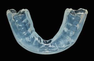 the pediatric dental specialists at Kids Dental can prescribe an individualized mouth guard